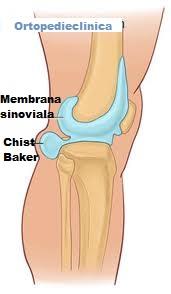 artroza becker chist tratament durere în articulația șoldului după ședință prelungită