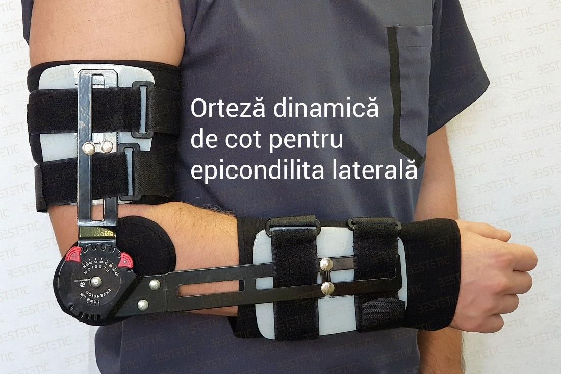 cum se tratează epicondilita laterală