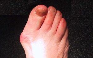 probleme mari ale articulației degetului mare