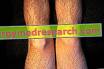 Fracturile rotulei – diagnostic și tratament