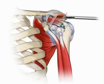 refacerea articulației umărului după fracturarea unui tubercul mare
