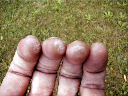 artroza precoce a articulației șoldului