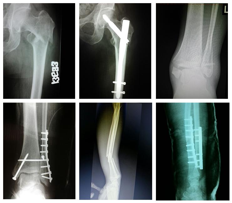 boala fracturii de șold
