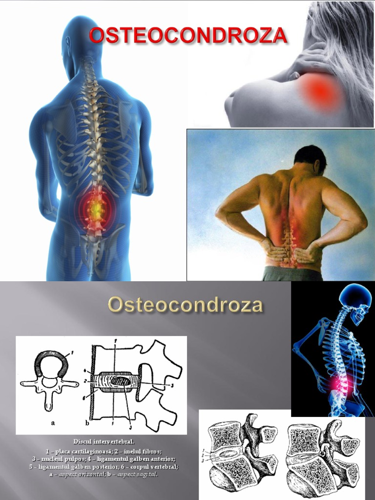 inflamația articulară în cap durere de înlocuire a șoldului după operație