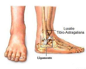 medicamente pentru artroza articulațiilor genunchiului