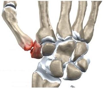 durere în articulația carpico-metacarpială a degetului mare