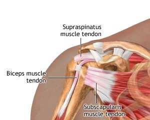 Deteriorarea ligamentelor la nivelul articulației umărului Навигация по записям