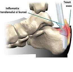 articulația este roșie și dureroasă durere sub genunchiul stâng