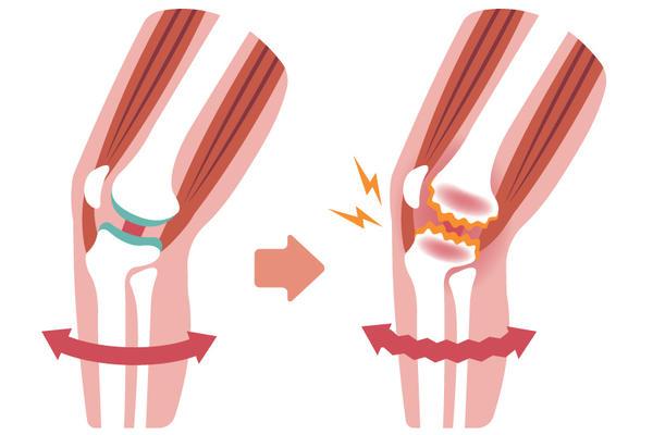 tratamentul gonartrozei genunchiului 2 grade