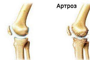 Semne inițiale ale tratamentului cu artroza genunchiului