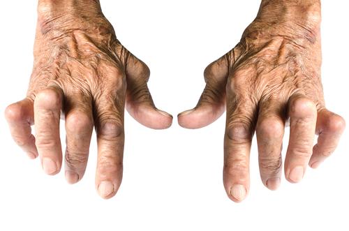 injecții pentru durere în articulația genunchiului care este regenerarea țesutului cartilaginos al articulațiilor