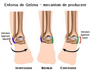 umflarea simptomelor gleznei și tratament durata administrării glucozaminei și condroitinei
