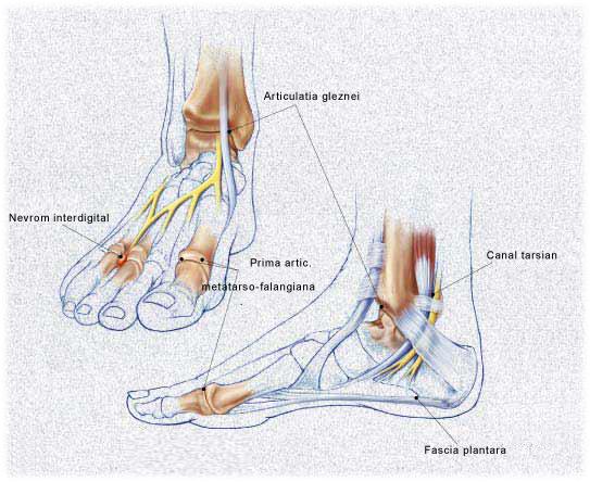 complicații ale artrozei articulației gleznei