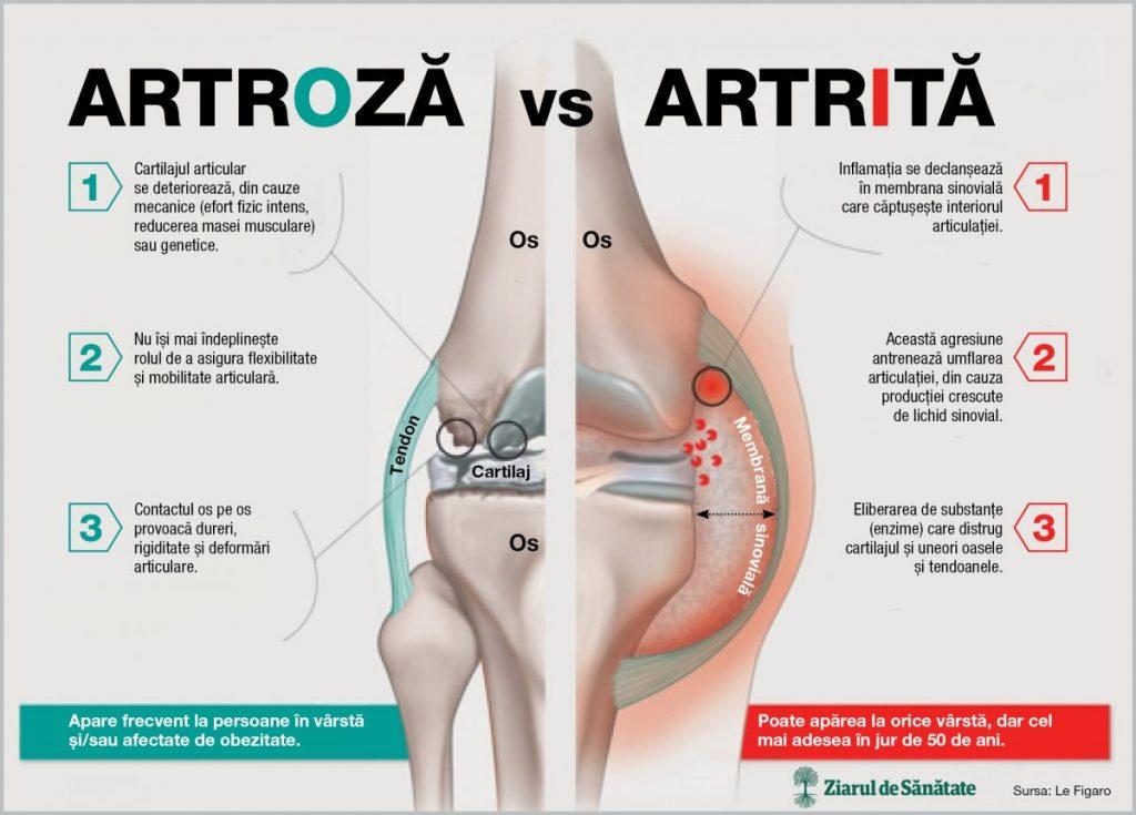 unguent de durere articulară severă artrita artroza genunchiului 4 grade