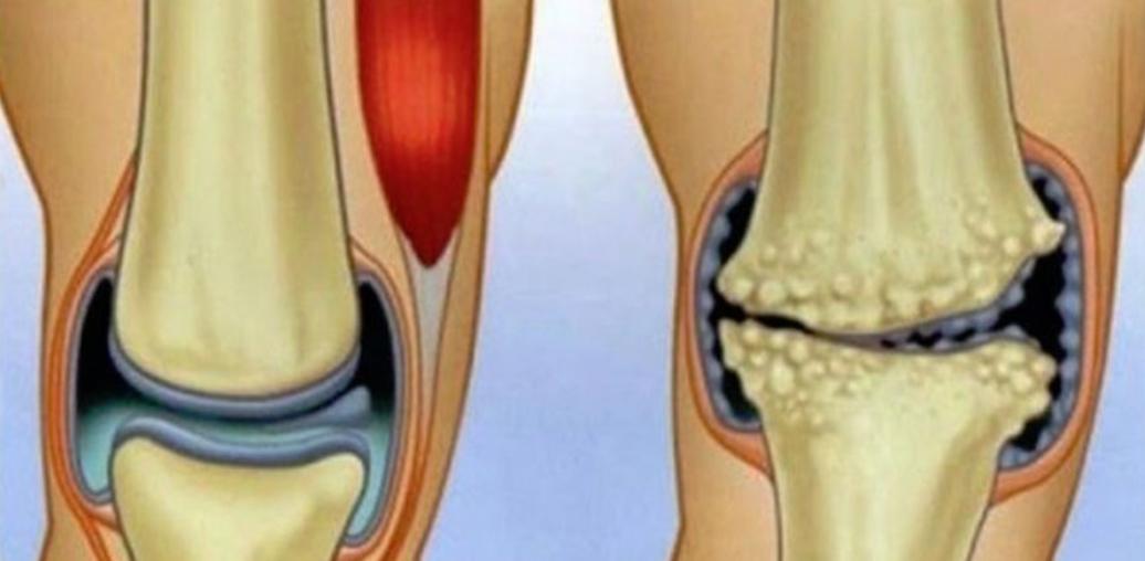ibuprofenul va ajuta la durerile articulare