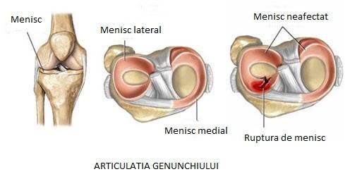 simptome de traume la meniscul intern al genunchiului tăierea durerilor în toate articulațiile
