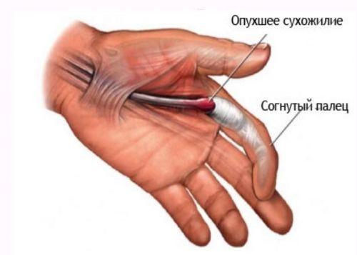 creșterea articulației degetului după accidentare