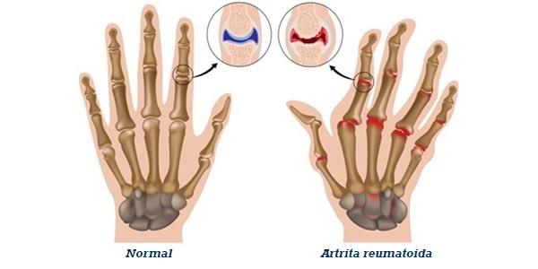 artrita reumatoidă a tratamentului articulației cotului tratamente temporale dane articulare