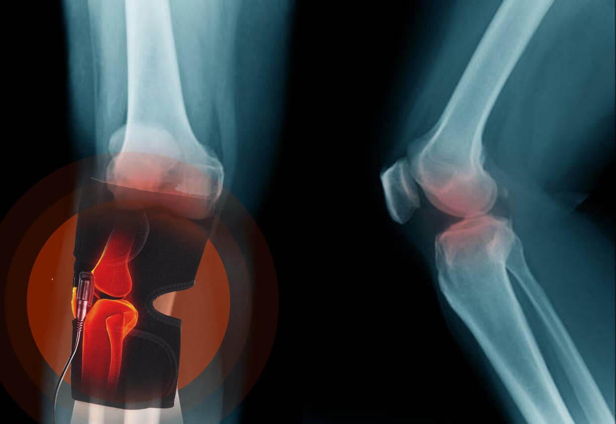 medicină pentru mobilitate articulară