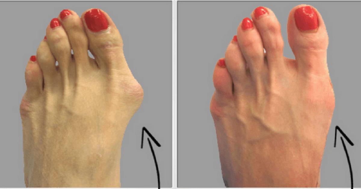 articulațiile degetului de la picioare