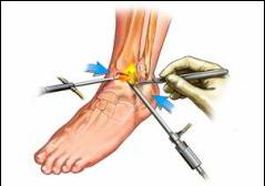 ruperea ligamentelor gleznei la domiciliu examinarea durerii în articulațiile umărului