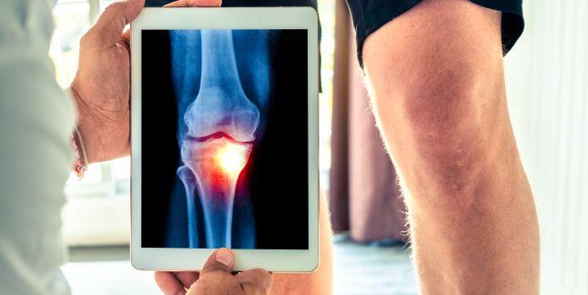 Paturi infraroșii pentru tratamentul artrozei