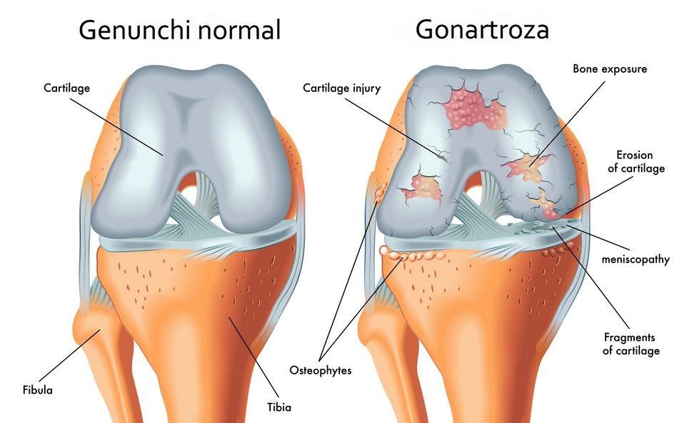 dacă brațul stâng în articulația umărului doare artroza deformantă a articulațiilor vertebrale costale