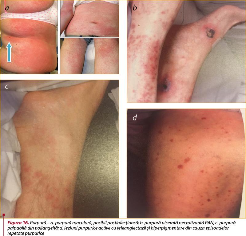Boala țesutului conjunctiv - Connective tissue disease - tranzactiiimobiliareonline.ro