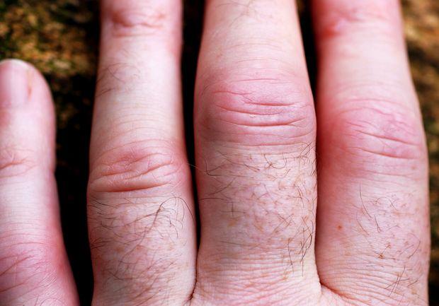 artrita reumatoidă la cot