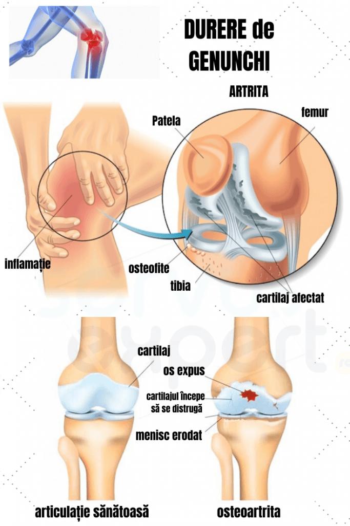 lung cu artroza genunchiului