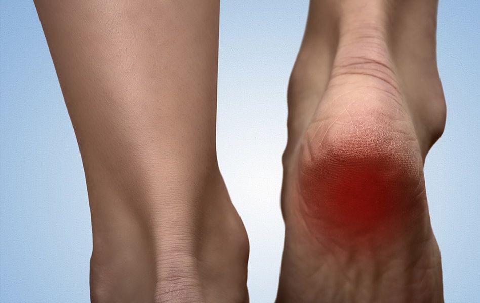 bolile articulare de călcâie