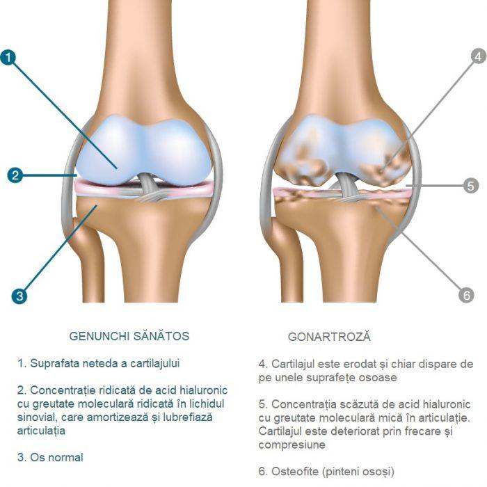 Calcificare la nivelul genunchului
