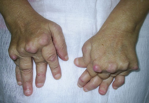 edem după ruperea ligamentelor gleznei a început durerea articulației genunchiului