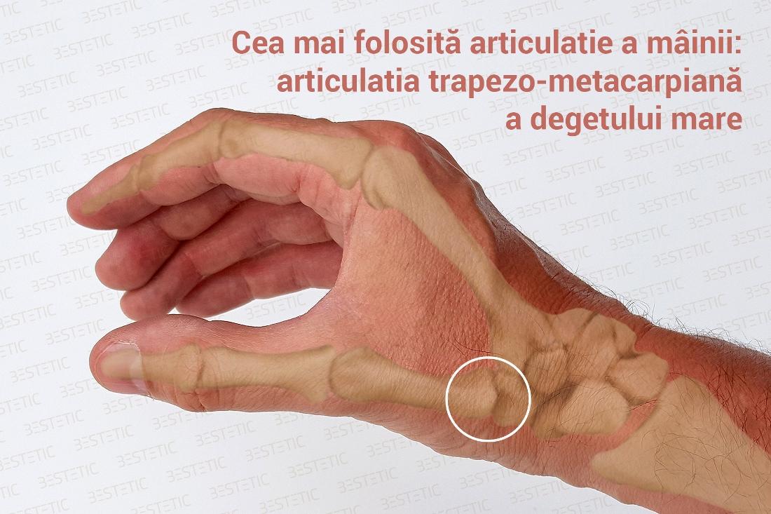 artroza articulațiilor degetelor mâinii stângi