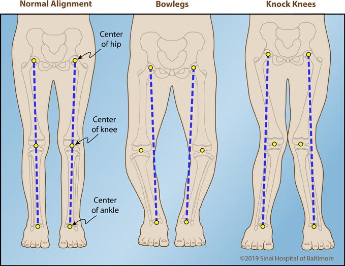 Este posibilă vindecarea artrozei deformante a articulației genunchiului dureri de umăr în repaus