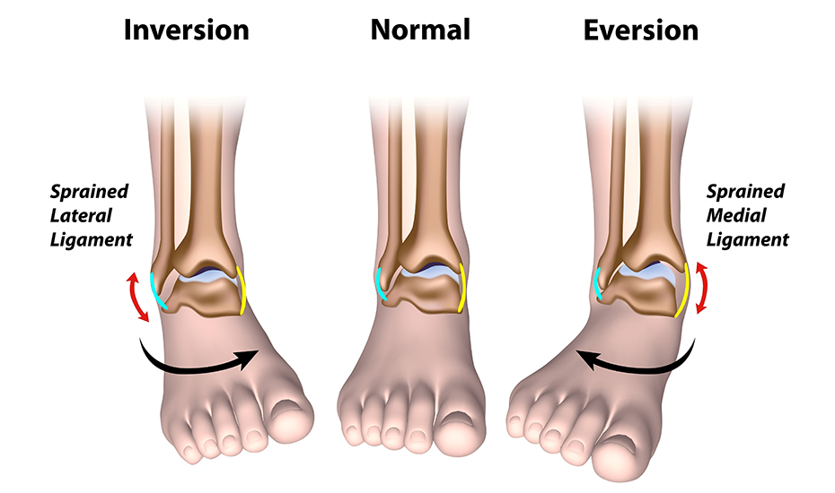 entorsă severă a tratamentului articulației genunchiului