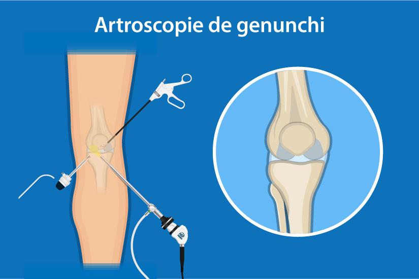 leziune închisă la genunchi cu sinovită