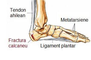tratamentul fracturii de gleznă