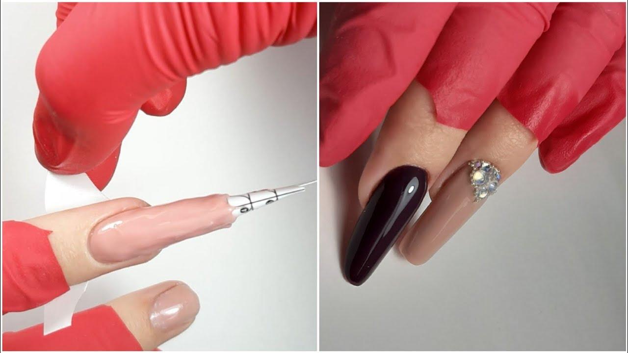zoovip cu gel articular remedii pentru durerea în articulațiile umerilor