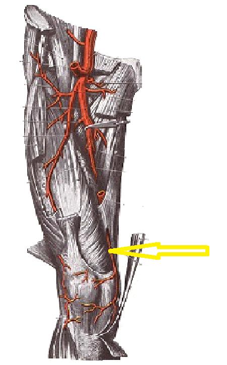 Tratamentul forum al artrozei articulației cotului. Artroza ar putea fi vindecata? - Doctor MIT