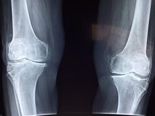Am artrita genunchiului antiinflamatoare pentru artroză și tratament