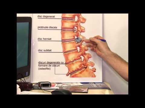 de ce durează toate articulațiile și coastele dureri la rinichi și articulații