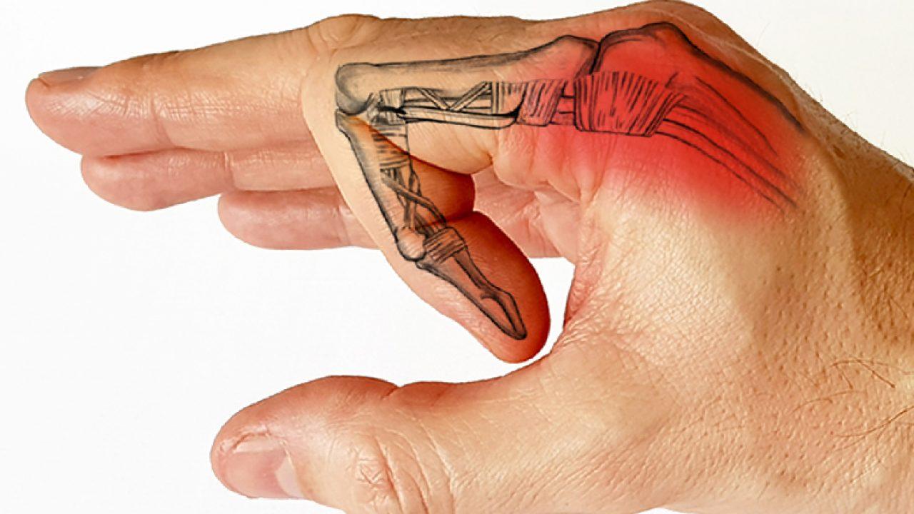 articulația metacarpofangianală a degetului arătător doare