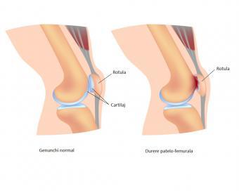 ce unguent trebuie aplicat pentru inflamația articulației