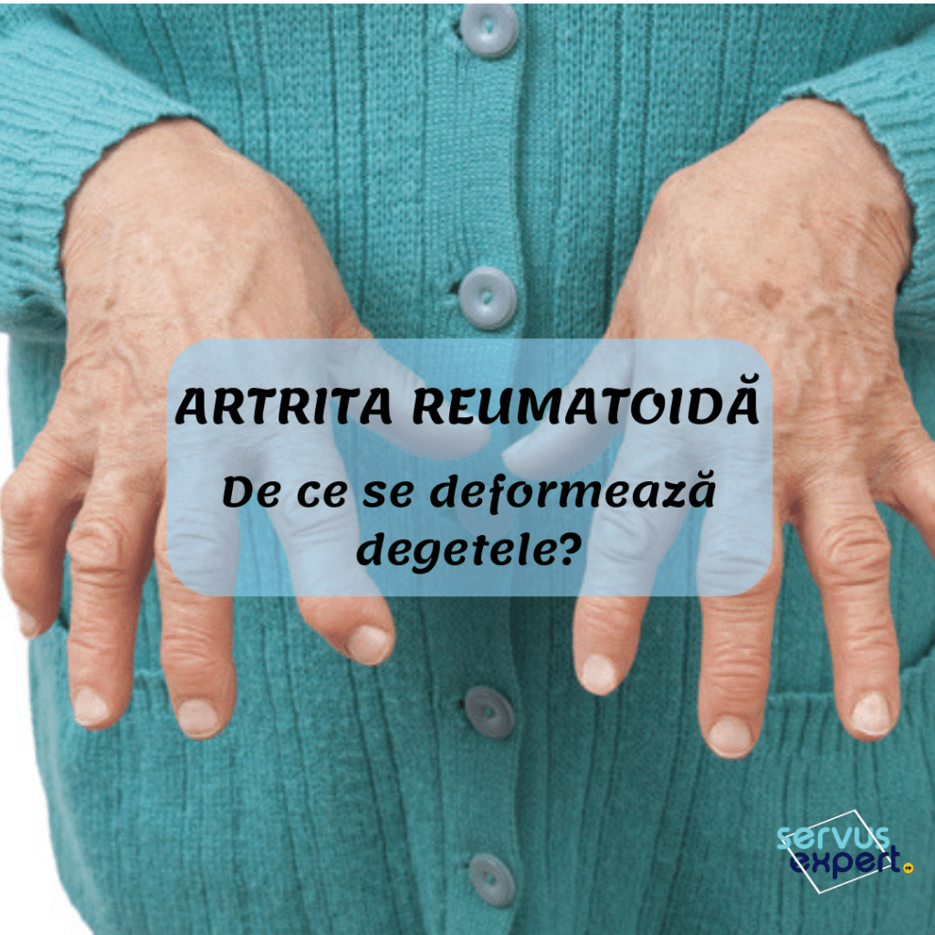 deformarea degetelor în artrita reumatoidă