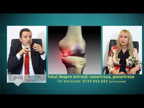 Condroprotectori pentru tratamentul artrozei umărului