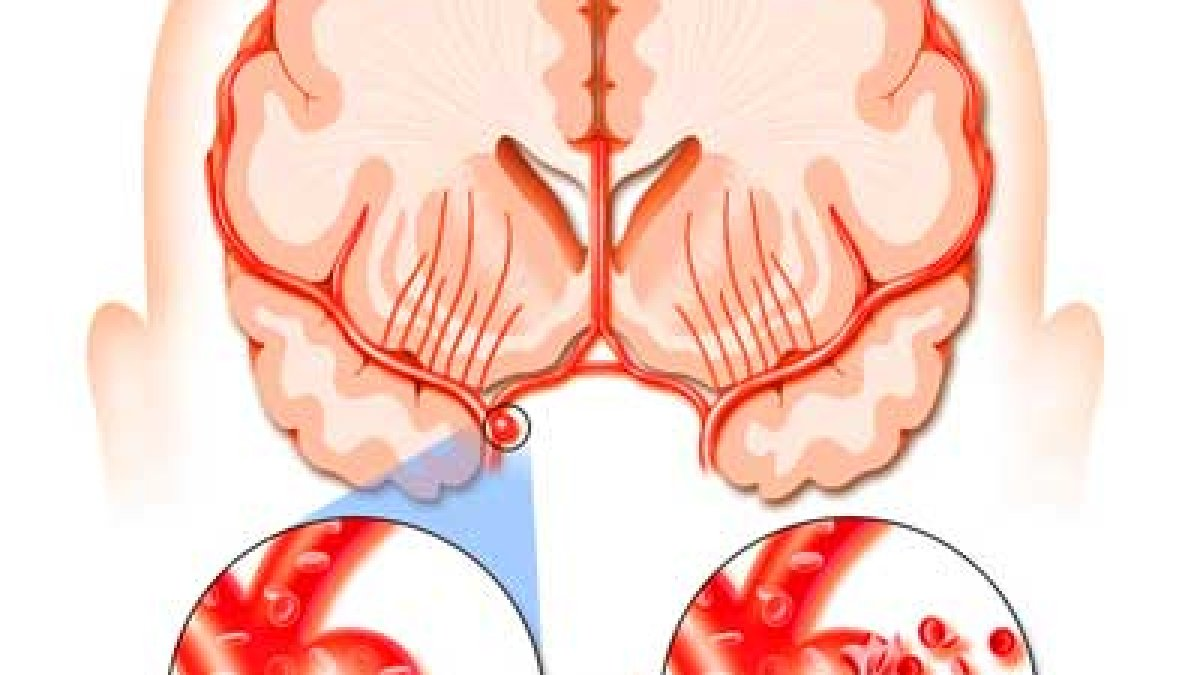 exerciții pentru durerea articulației încheieturii unguent articular apizatron