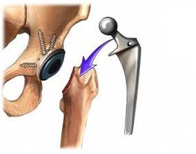Artroplastia de șold - intervenția pentru bolnavii de coxartroză sau alte afecțiuni ale șoldului
