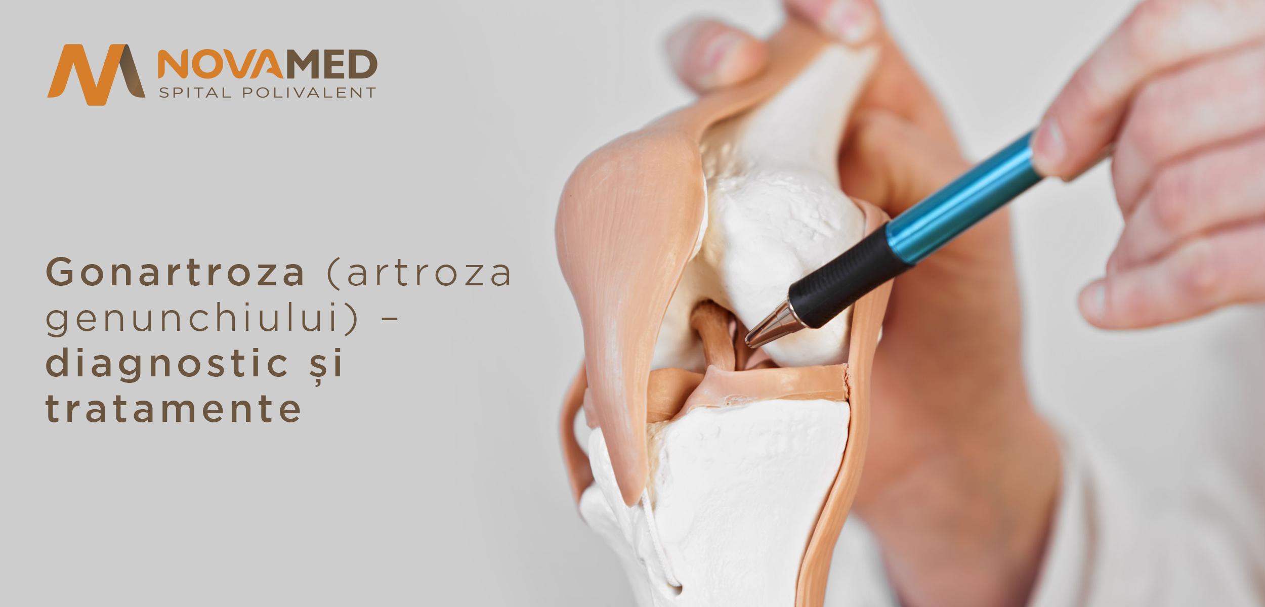 răspuns la tratamentul artrozei dureri în articulația degetului mare