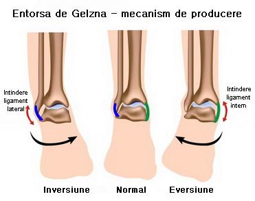 Glezna dislocare: simptome și tratament
